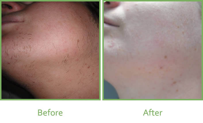 Before and after images of laser hair removal