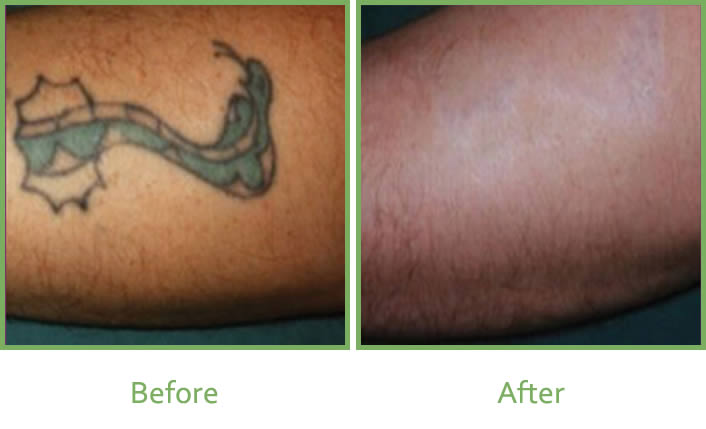 Laser tattoo removal of green ink
