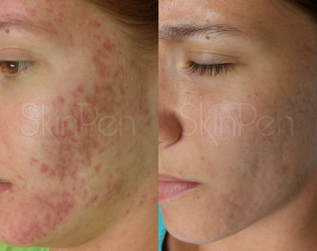 Skin Pen Before and After