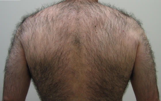 Before laser back hair removal