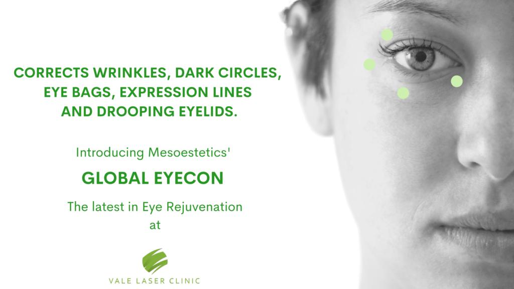 Global Eyecon