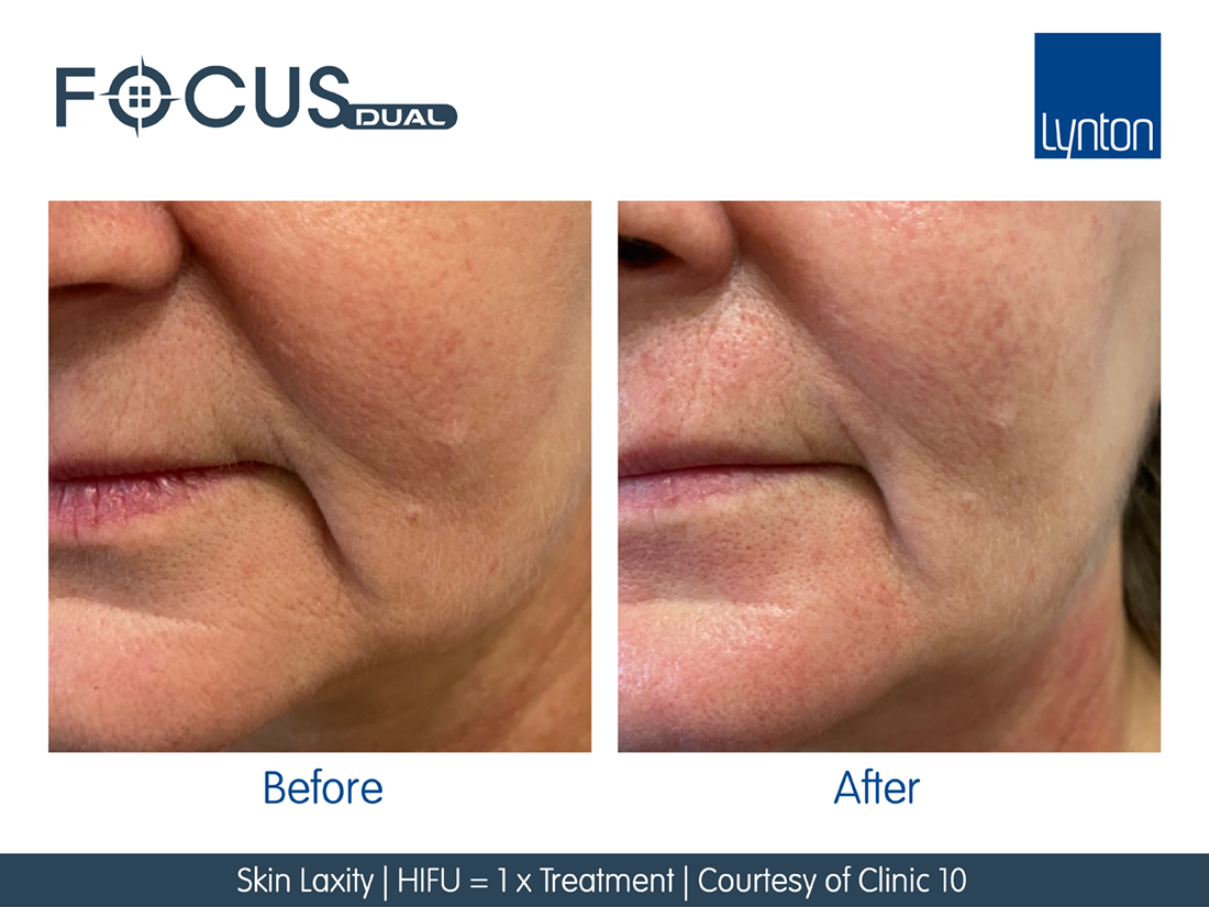 before and after pictures on the cheek using focus dual RF