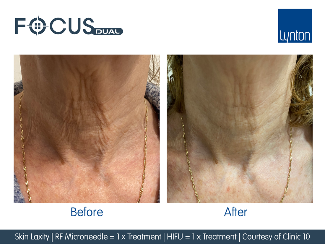 before and after pictures of treatment to neck with the focus RF